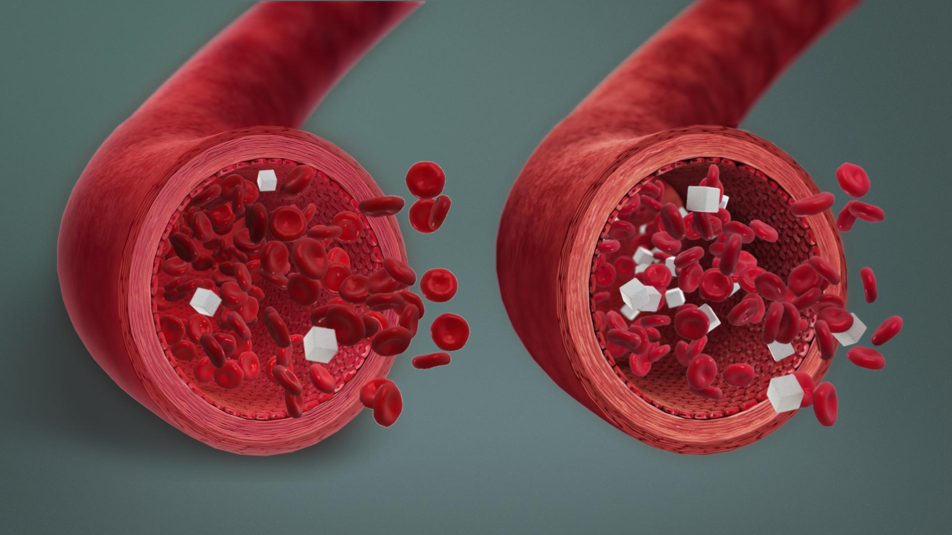 Hypoglycaemia