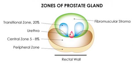 The Prostate gland-zones